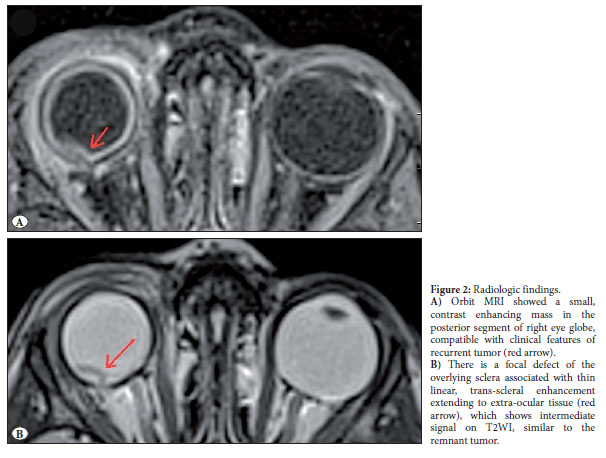 Choroidal Detachment Mri
